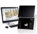 SIEMENS D900 -  Itraoraler 3D-Scanner - 1