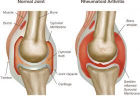 A CASE FOR ULTRASOUND: RHEUMATOID ARTHRITIS - Bimedis - 1