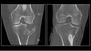 AS LOW AS REASONABLY ACHIEVABLE: ULTRA-LOW DOSE CT SCANS - Bimedis - 1
