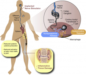 VAGUS NERVE STIMULATION DEVICE RELIEVES RHEUMATOID ARTHRITIS PAIN - Bimedis - 1