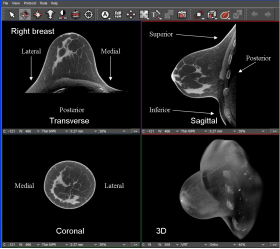 KONING INTRODUCES 3D BREAST CT SYSTEM - Bimedis - 1