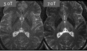 7 T MRI: IS IT WORTH IT? - Bimedis - 1