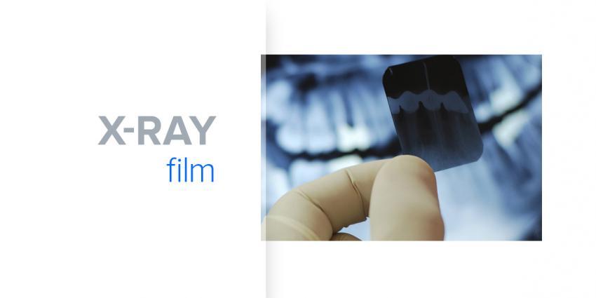 Film- oder Digitalröntgen – Klassik oder Modernität?