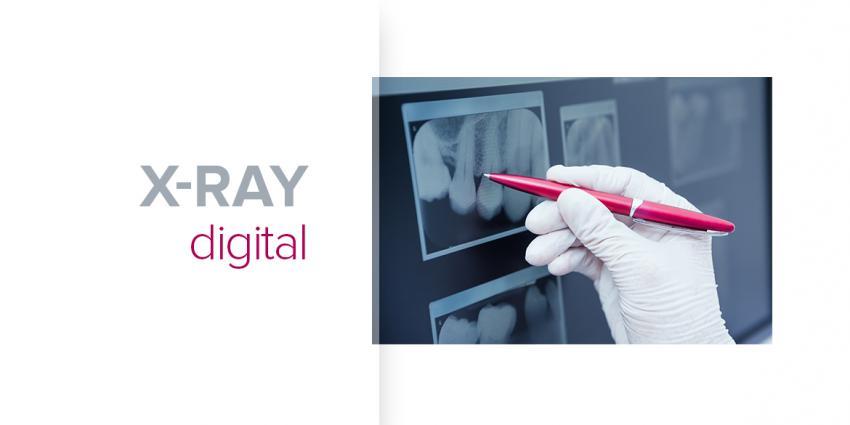 La radiographie numérique ou à pellicule – c'est classique ou moderne?
