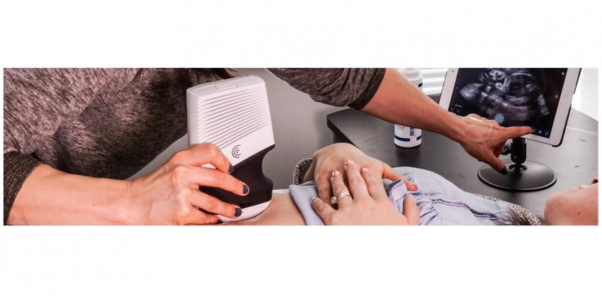 Clarius launches new wireless scanners for emergency diagnostics