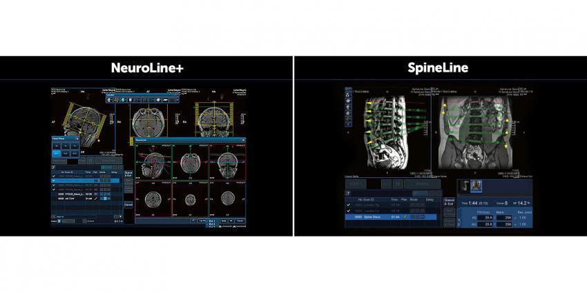 Toshiba Medical a lancé un nouveau scanner d'IRM Vantage Titan/Zen Edition 1.5T