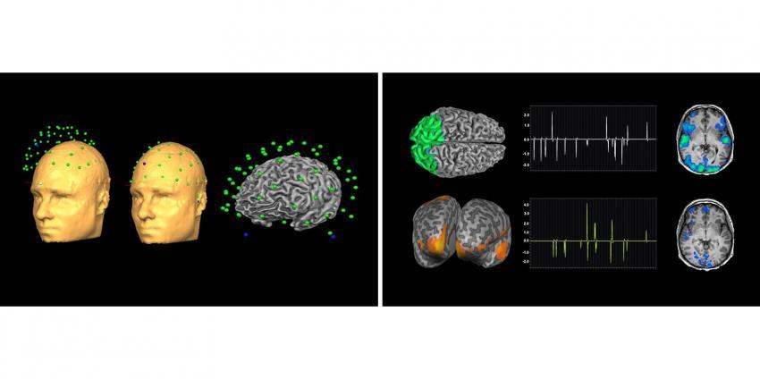 Es wurde ein Gerät für gleichzeitiges EEG und fMRT während des MRT-Scans entwickelt