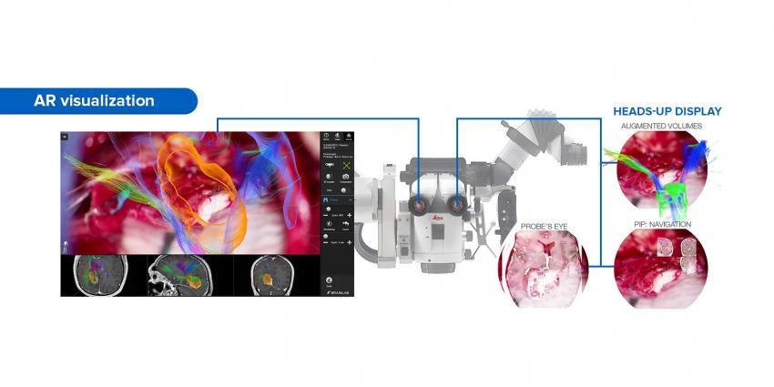 Leica a prezentat nouă tehnologie de vizualizare AR pentru microscoape chirurgice