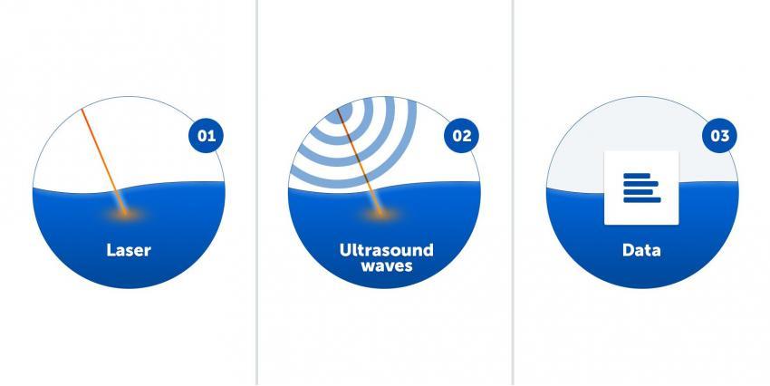 Портативный сканер RSOM отображает васкуляризацию у пациентов с псориазом