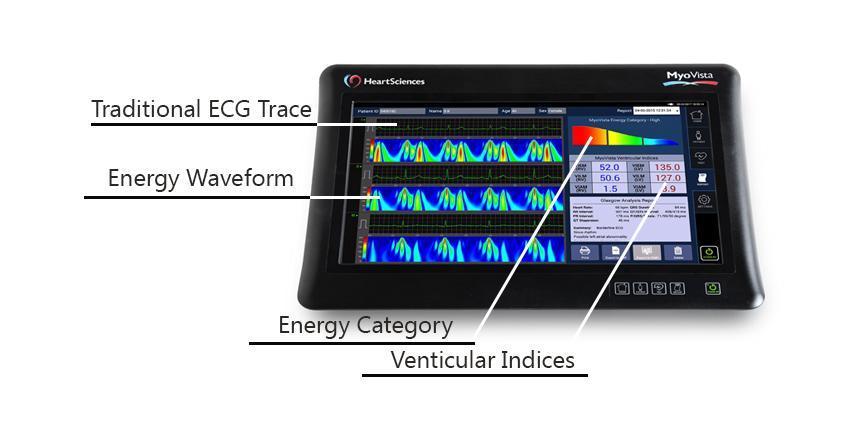 MyoVista: новий високочутливий ЕКГ від HeartSciences