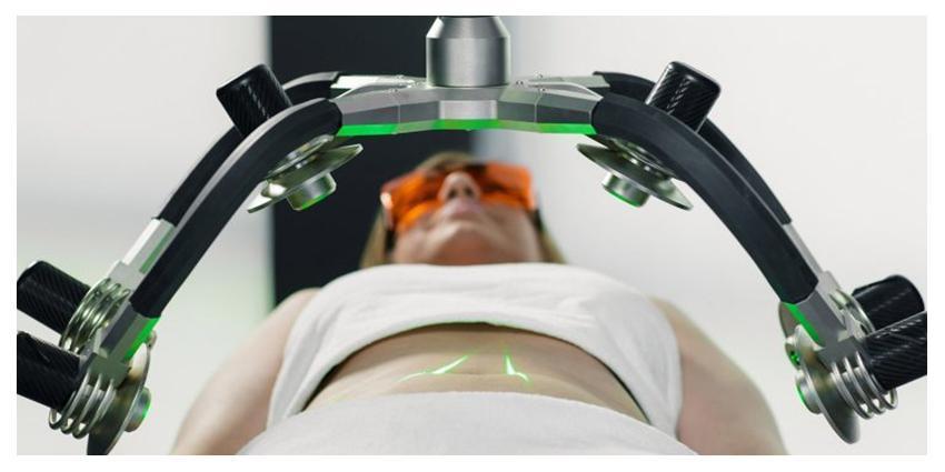 Le système laser Zerona c'est une supertechnologie du futur pour la correction non invasive de taille