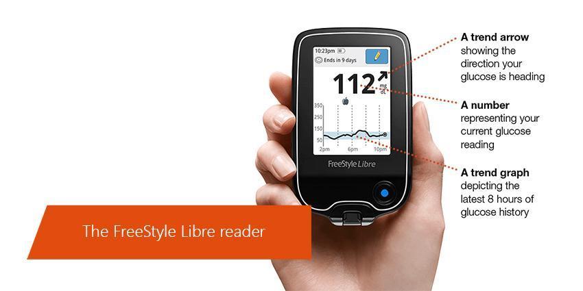 FreeStyle Libre: le contrôle du niveau de glucose d'Abbott