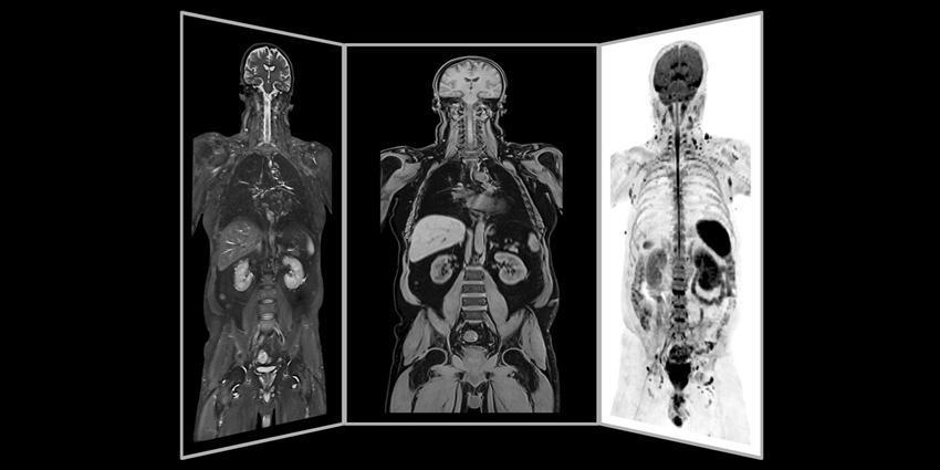 Magnetom Vida 3T d'IRM accélère l'examen des patients