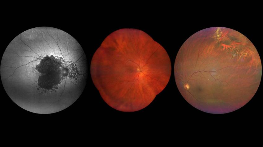 High-quality retinal diagnostics with ZEISS CLARUS 500