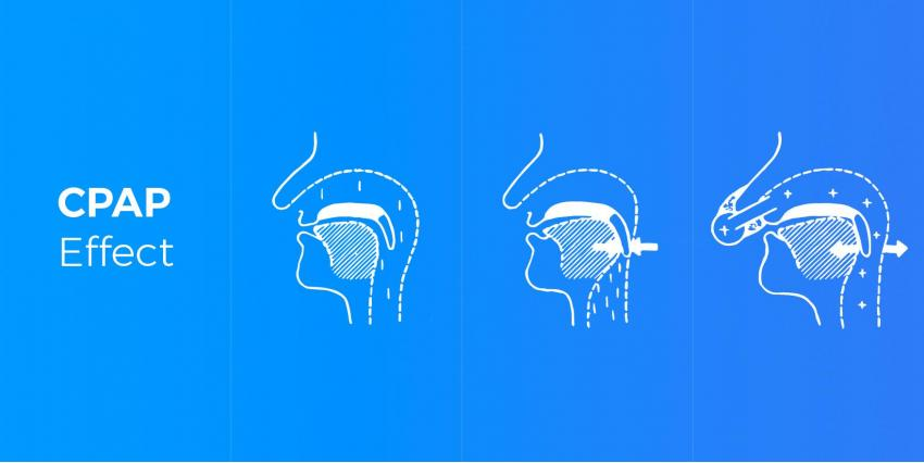 WHAT IS THE DIFFERENCE BETWEEN CPAP AND BIPAP?