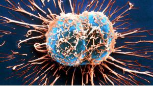GOLD NANOPARTICLES ARMED WITH SPECIAL PEPTIDE ARE EFFICIENT CANCER KIL ... - Bimedis - 1