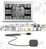 DEXIS PLATINUM 9 | Sistema de radiografía dental | $5000 (ID1103966)