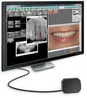 DEXIS PLATINUM 9 | Sistema de radiografía dental | $5000