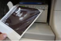 Photo PHILIPS iU22 Ultrasound Machine - 13