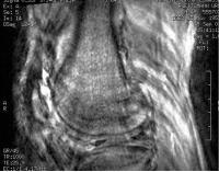 Foto Ersatzteile Zum Mrt-scanner ITEL Diamags - 4
