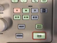 Photo ALOKA SSD-1400 Ultrasound Machine - 11