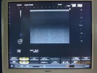 Photo HITACHI HI VISION Preirus Ultrasound Machine - 3