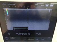 Photo HITACHI HI VISION Preirus Ultrasound Machine - 6