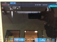 Photo ESAOTE MyLab 25 Ultrasound Machine - 8