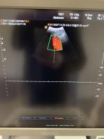 Foto SAMSUNG Accuvix XG Ultraschallgerät - 9