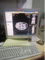 Photo PHILIPS Brilliance 16 CT Scanner - 18