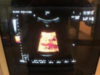Photo ALOKA SSD-1700 Échographe - 7