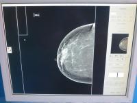 Foto HOLOGIC Lorad Selenia Mammograf - 16