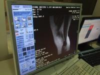 Foto GE Signa Ovation 0.35T MRT-Scanner - 5