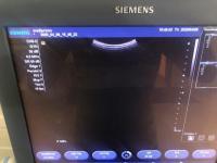 Photo SIEMENS ACUSON X300 Ultrasound Machine - 3
