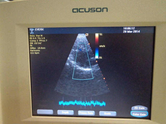 cypress ultrasound machine